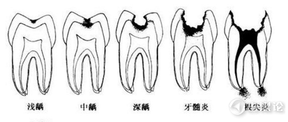 请爱护珍惜你的牙齿! v2-74c809bba6bb3934839efb41a6fb2229_r.jpg
